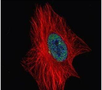 ZNF449 Antibody (PA5-30735)