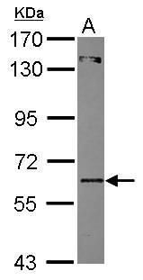 ZNF449 Antibody (PA5-30735) in Western Blot