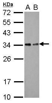 TOLLIP Antibody (PA5-30747) in Western Blot