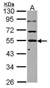 KLHDC4 Antibody (PA5-30756) in Western Blot
