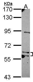 MKS1 Antibody (PA5-30758) in Western Blot