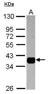 AKR1B10 Antibody (PA5-30773) in Western Blot