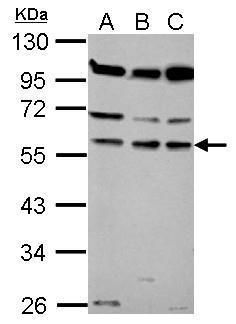 Coronin 1B Antibody (PA5-30775) in Western Blot