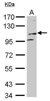 KIF17 Antibody (PA5-30778) in Western Blot