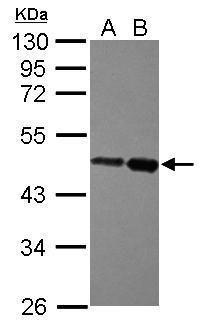 ZBTB26 Antibody (PA5-30781) in Western Blot