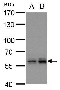 PTBP2 Antibody (PA5-30785) in Western Blot