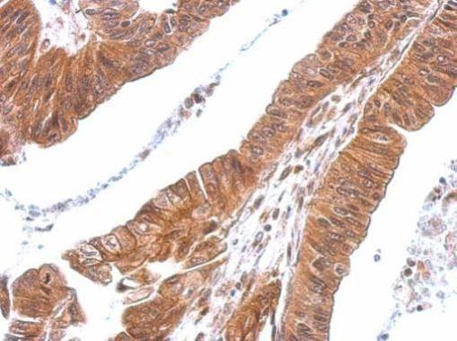 CXCL16 Antibody (PA5-30786) in Immunohistochemistry (Paraffin)