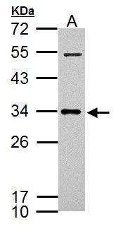 CXCL16 Antibody (PA5-30786) in Western Blot