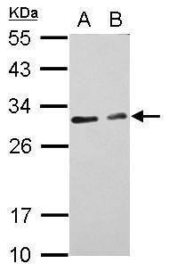 CIDEC Antibody (PA5-30793) in Western Blot