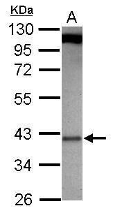 GBL Antibody (PA5-30796) in Western Blot