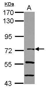 IkB zeta Antibody (PA5-30797) in Western Blot