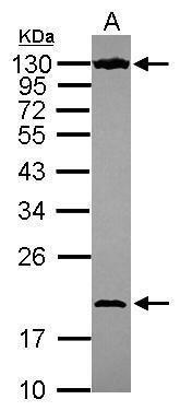 NOL6 Antibody (PA5-30807) in Western Blot