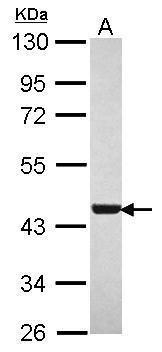 MEP50 Antibody (PA5-30811) in Western Blot
