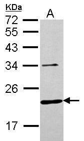 CHMP6 Antibody (PA5-30815) in Western Blot