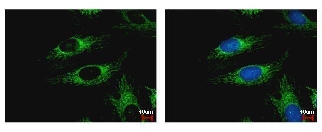 WDR61 Antibody (PA5-30833)