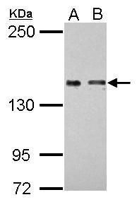 COLEC12 Antibody (PA5-30835) in Western Blot