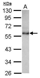 CHST9 Antibody (PA5-30842) in Western Blot