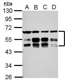 ZFYVE19 Antibody (PA5-30855) in Western Blot