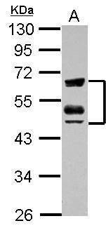ZFYVE19 Antibody (PA5-30856)