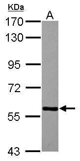 TBLR1 Antibody (PA5-30861)