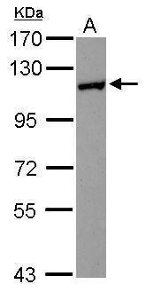 HIP1R Antibody (PA5-30863) in Western Blot