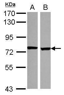SCNN1D Antibody (PA5-30864) in Western Blot