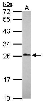 LIN7A Antibody (PA5-30871) in Western Blot