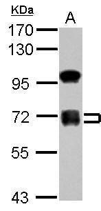 ZNF182 Antibody (PA5-30873) in Western Blot