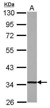 DECR1 Antibody (PA5-30878) in Western Blot
