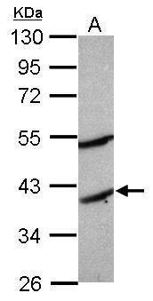 MOGAT2 Antibody (PA5-30880)