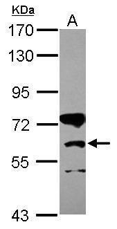 CPT1B Antibody (PA5-30896) in Western Blot
