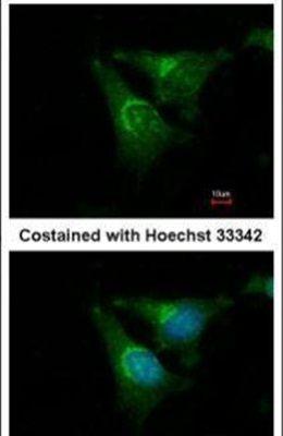 Jouberin Antibody (PA5-30901) in Immunofluorescence