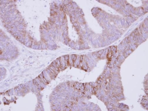 Jouberin Antibody (PA5-30901) in Immunohistochemistry (Paraffin)