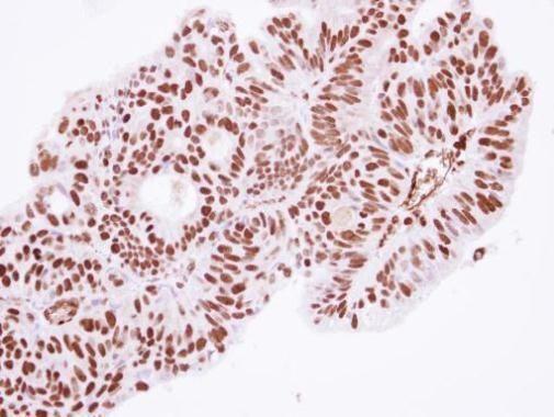TRIM47 Antibody (PA5-30902) in Immunohistochemistry (Paraffin)