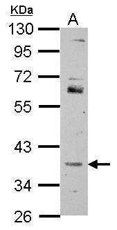 FOXR2 Antibody (PA5-30909)