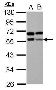 ZBTB9 Antibody (PA5-30915) in Western Blot