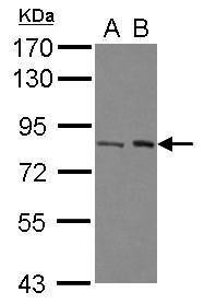 BAAT1 Antibody (PA5-30916) in Western Blot