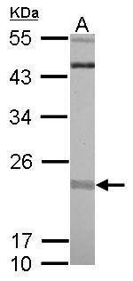 RIT1 Antibody (PA5-30919) in Western Blot