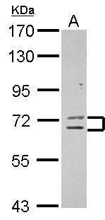 ZNF182 Antibody (PA5-30921) in Western Blot