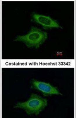 BAG2 Antibody (PA5-30922)