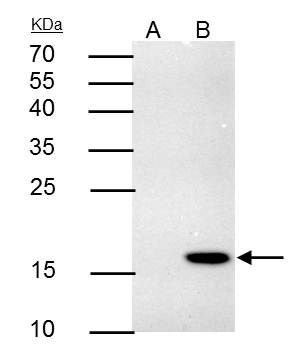 4-1BB Ligand Antibody (PA5-30924) in Immunoprecipitation