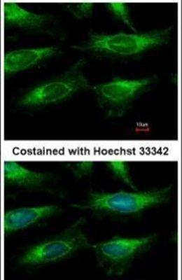 NAMPT Antibody (PA5-30940) in Immunofluorescence