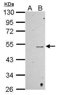 Methyl-p53 (Lys372) Antibody (PA5-30947) in Western Blot