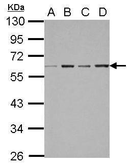 FXR Antibody (PA5-30951) in Western Blot
