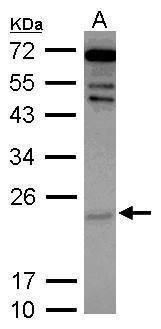 Cytoglobin Antibody (PA5-30957) in Western Blot