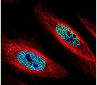 hnRNP A2B1 Antibody (PA5-30960)