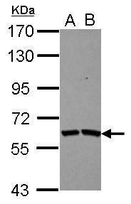 TSKS Antibody (PA5-30961) in Western Blot