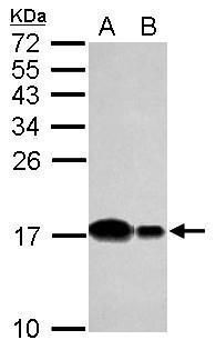 UBE2D2 Antibody (PA5-30968) in Western Blot
