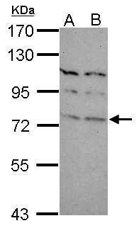 TBR1 Antibody (PA5-30971) in Western Blot