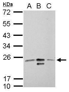 MRRF Antibody (PA5-30975) in Western Blot